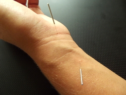 Acupuncture at points Daling and Neiguan which were used in this research: acupuncture and electroacupuncture are both helpful for carpal tunnel syndrome.