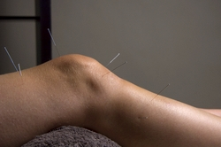Acupuncture for arthritis: treatment of osteoarthritis of the knees
