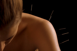 Acupuncture treatment for neck and shoulder pain.