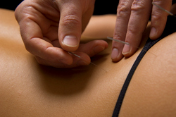 Acupuncture for back pain and sciatica.