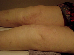 Acupuncture treatment of knee osteoarthritis.