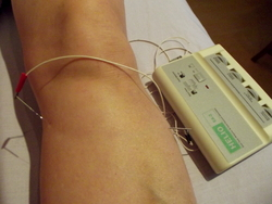Acupuncture in Exeter: electro-acupuncture helps diabetic peripheral neuropathy.