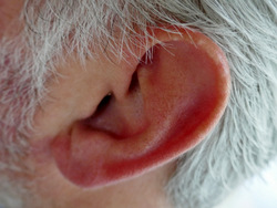 Acupuncture in Exeter: ear acupuncture for spinal pain.