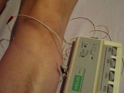 Electroacupuncture for knee osteoarthritis: a tiny electrical current is run between two needles.