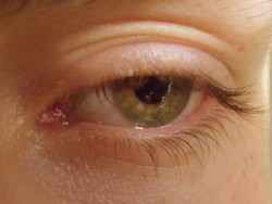 Acupuncture can help glaucoma.