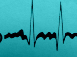 Acupuncture in Exeter: acupuncture reduces recurrence of atrial fibrillation .