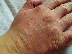 Acupuncture for psoriasis.